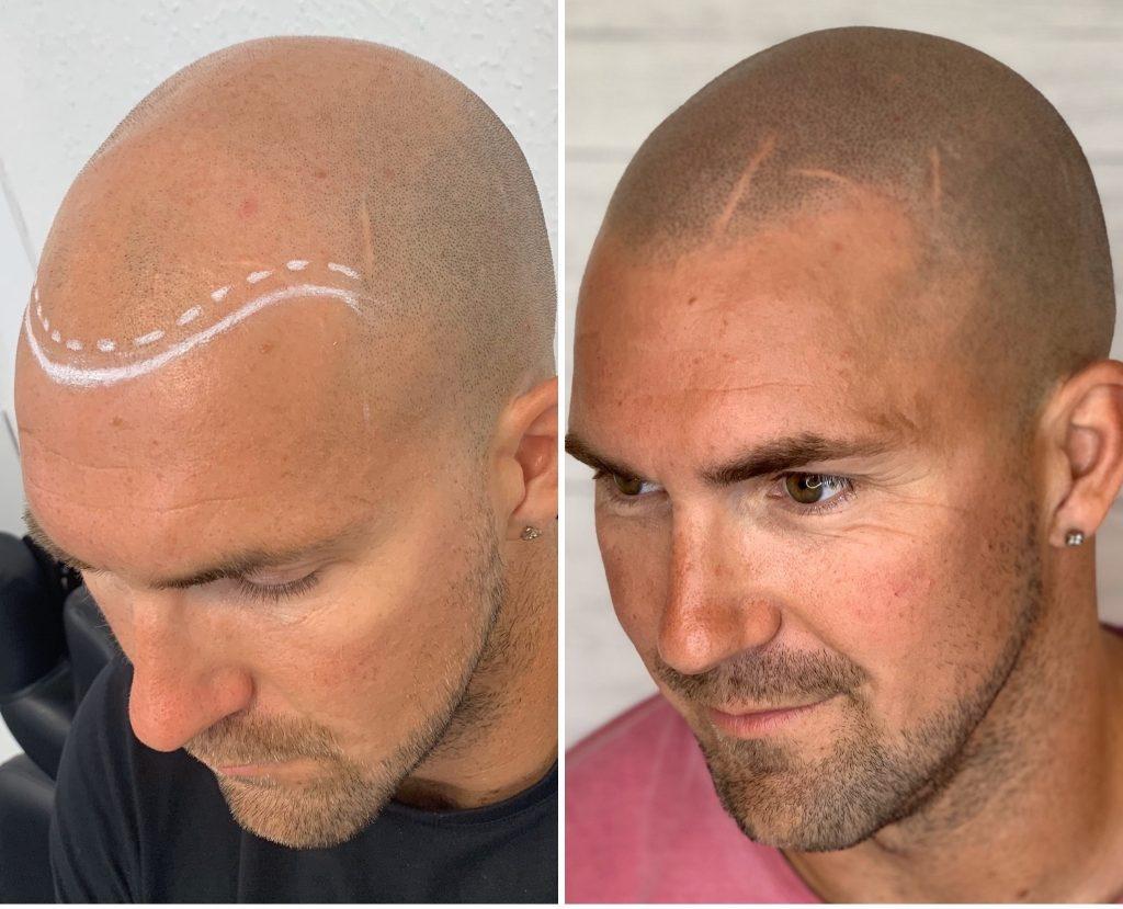 scalp micropigmantation